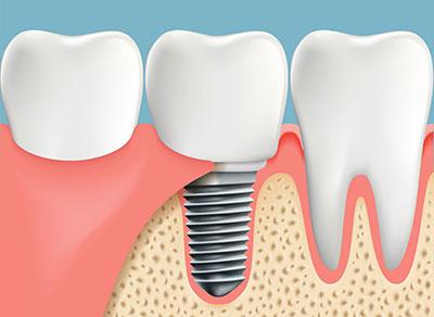 Dental implants Delta BC